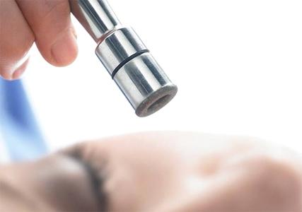 Mikrodermoabrazija lica beauty centar chiara